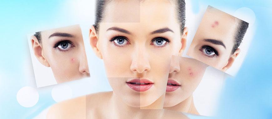 t - Cách điều trị mụn ẩn dưới da