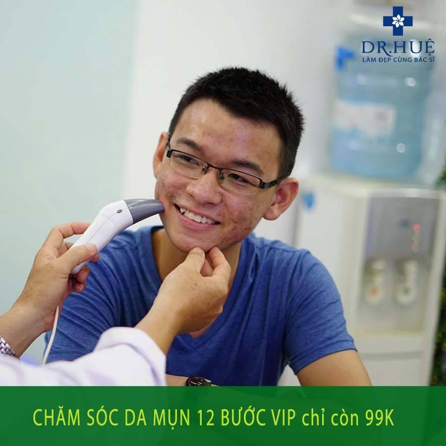 dr-hue-kham-mun-cho-sv