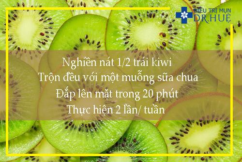 kiwi-chua-nhieu-vitamin-tot-cho-da
