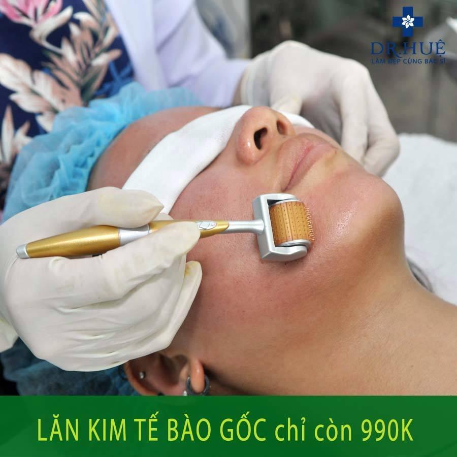 lan-kim-990k
