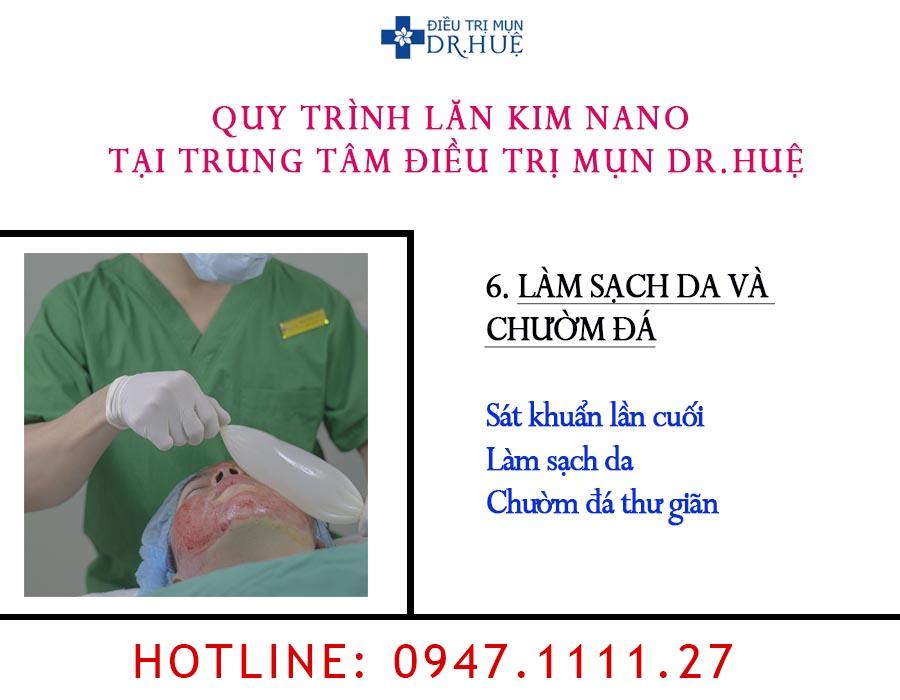 lan-kim-nano-dr-hue