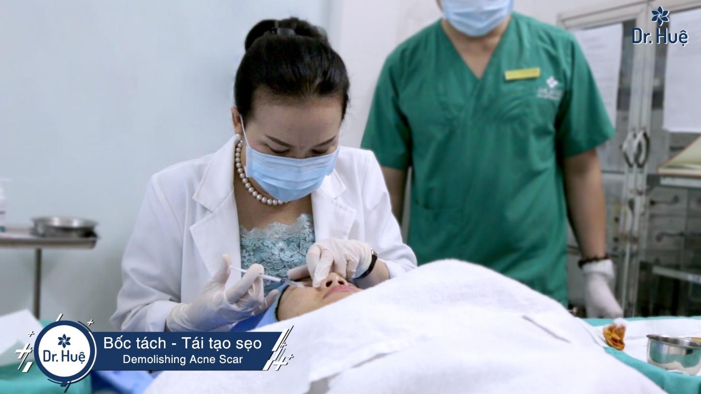 quy trình bốc tách sẹo
