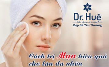 cách trị mụn cho làn da nhờn