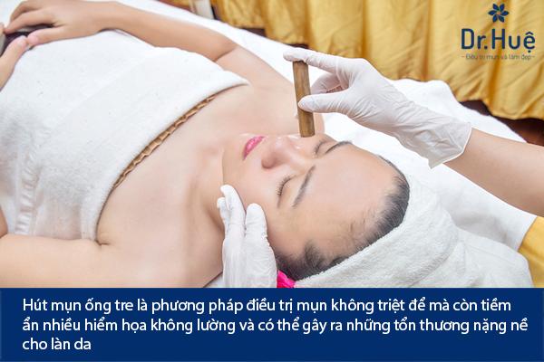 hut-mun-bang-ong-tre