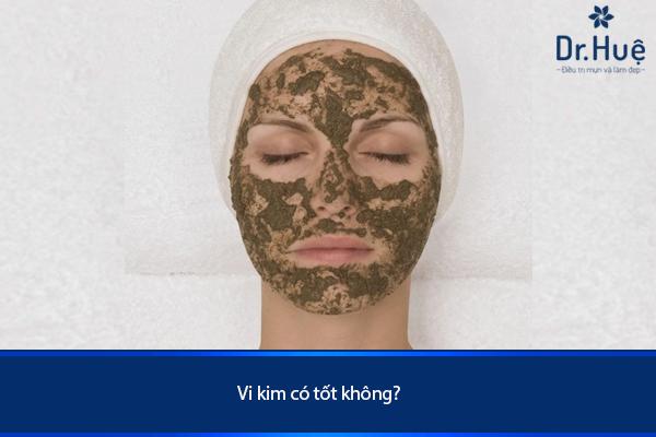 vi-kim-tri-mun