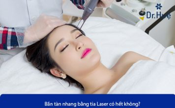 ban-tan-nhang-bang-tai-laser-co-het-khong
