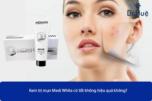 kem-tri-mun-medi-white-co-hieu-qua-khong